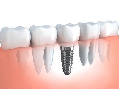 Dental Implants Grapevine TX | Grapevine Dental