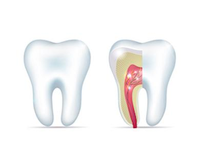 Root Canal Diagram | Grapevine TX
