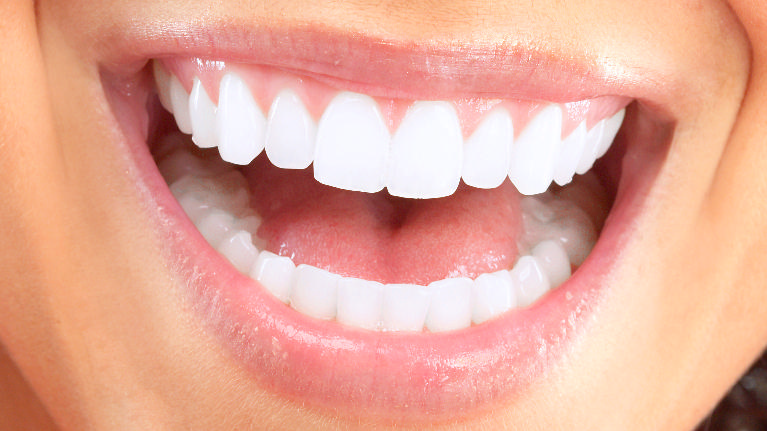 Dental Implants in Grapevine TX