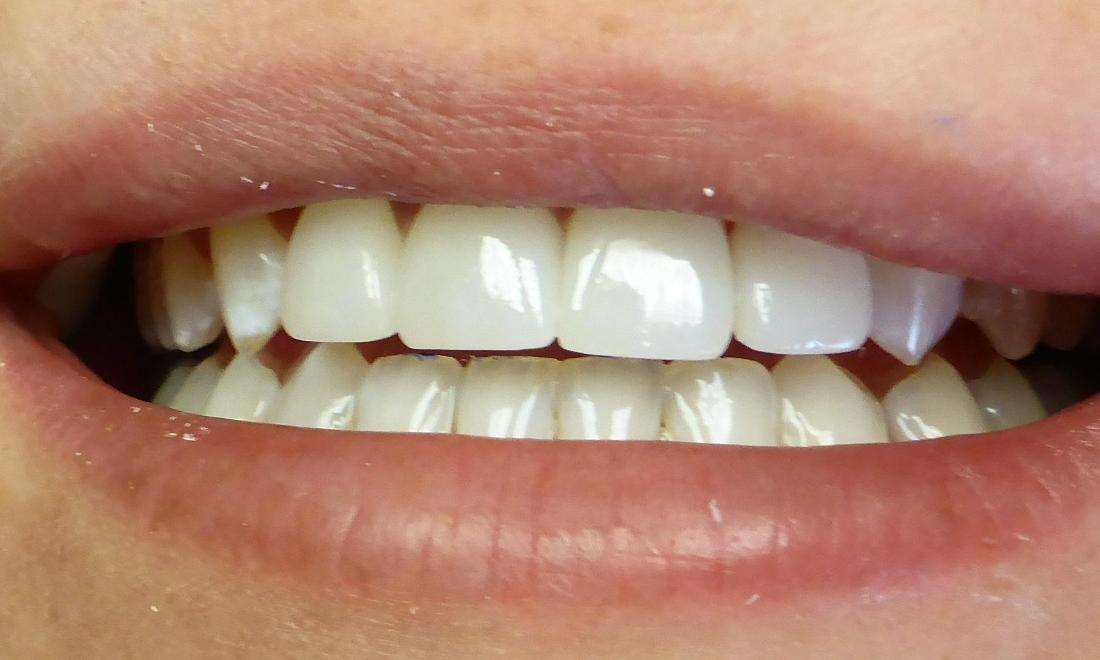 Tooth Repair in Grapevine TX | After