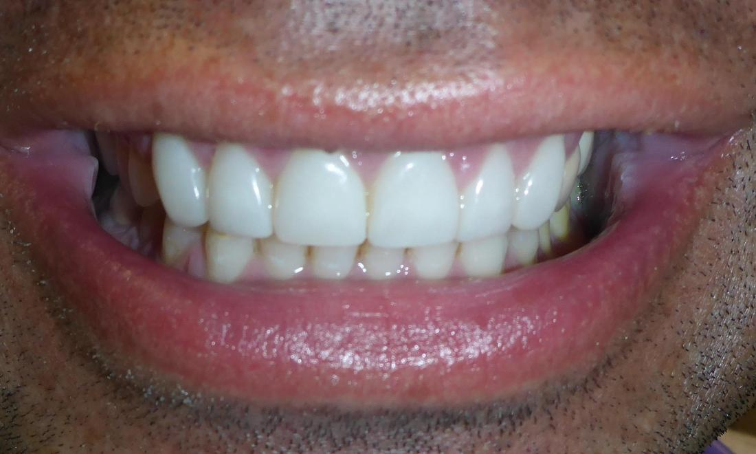 Cosmetic Dentistry in Grapevine TX | After