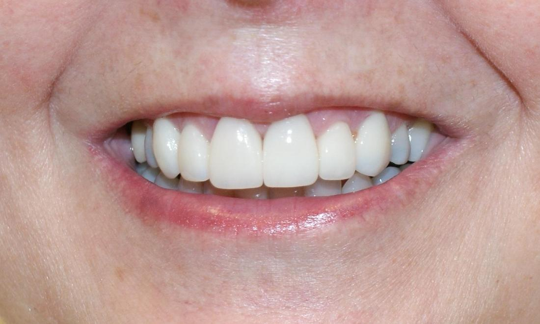 Veneers in Grapevine TX | After