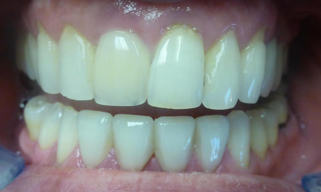 Smile Transformation in Grapevine TX | After