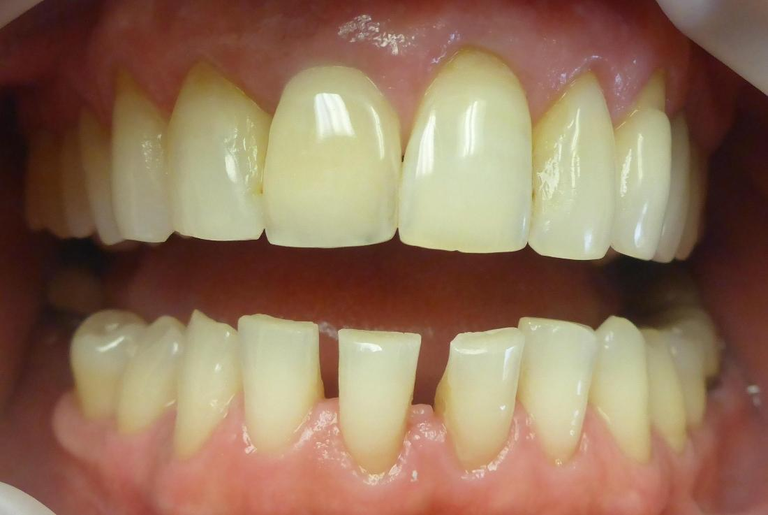 Smile Transformation in Grapevine TX | Before
