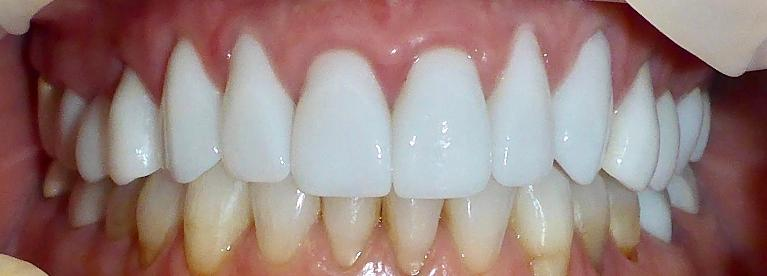 Patient-was-Unhappy-With-Previous-Cosmetic-Dentistry-Top-After-Image
