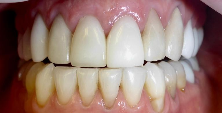 Patient-was-Unhappy-With-Previous-Cosmetic-Dentistry-Top-Before-Image
